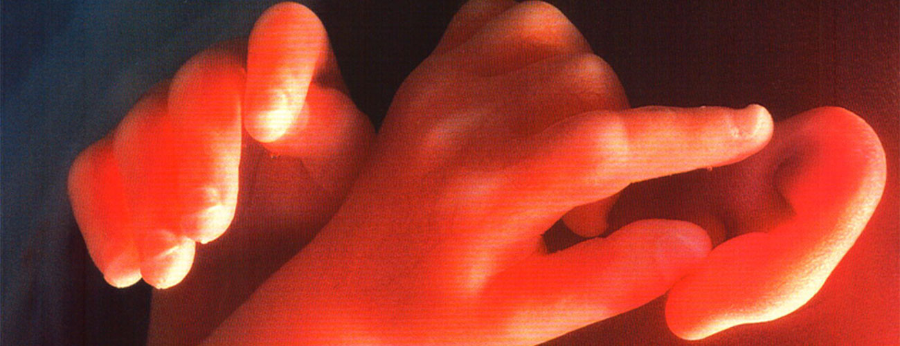 anomalie fetali