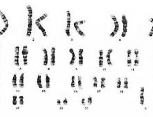 Quando manca un cromosoma X: la Sindrome di Turner