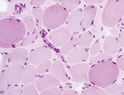 Distrofia di Duchenne: una diagnosi precoce per la cura