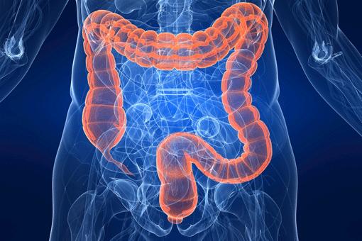 poliposi colon genetica